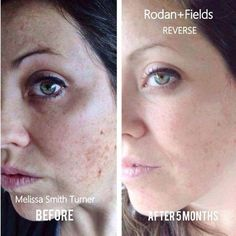 Sun/brown spots no more.   REVERSE works - message me to learn more about how Rodan and Fields products can work for you!  http://cbroughton.myrandf.com/ca cbroughton.myrandf@gmail.com