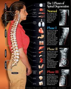 Spinal stenosis has become very common these days and it is a cause for chronic back pain in adults. Here are 11 things everyone should know about spinal stenosis. Cervical Spinal Stenosis, Spinal Stenosis Surgery, Douleur Nerf, K Tape, Spinal Nerve, Spinal Cord, Medical Student, Back Surgery, Degenerative Disc Disease