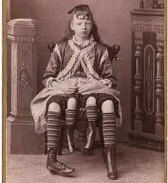 Four legged girl    In the 1860s, a photographer named Charles Eisenmann photographed thousands of circus freaks.