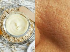Lip Care, Face Care, Diy Beauty, Beauty Hacks, Perfect Skin, Beauty Routines, Natural Remedies, Food, Lisa