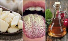 Cómo controlar el crecimiento excesivo de la cándida con 6 remedios naturales