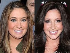 Bristol Palin before and after plastic surgery