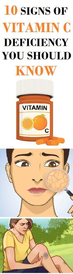 It is recommended that we take vitamin C when we have a cold or the flu. It is also great for many diseases, as well as for our beauty. However, if your body lacks this vitamin, you can experience many health issues.