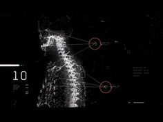 A gif of the medical and 3D motion graphics we made for the fourth interstitial to the Cryptaris mission. This fourth interstitial is about helping the injured people in the second impact zone.  Yo...