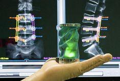 #medicina #avancesmedicos espa�a #cirugia #cirugia #columna #cirugiacolumnavertebral #OliverAyatsInstitute #teknon #medicina #medical #medicos #medical #myluxepoint  #healthcare #health #life