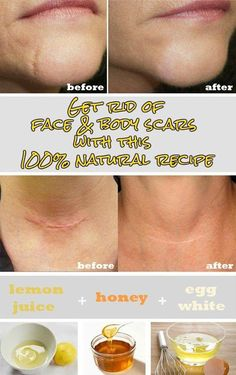 Ingredients: – 4 tsp lemon juice – 4 tsp honey – 1 egg white Instruction: – Add all ingredients in a bowl and mix them well – After mixing all ingredients, scar removal cream is ready for use – Apply the cream directly on the scars and leave on for 20 minutes – After 20 minutes, rinse the area with warm water – Follow the remedy once a day for at least 30 days