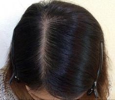 32歳女性の発毛体験!発毛して自分らしさを取り戻せた!!
