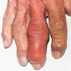 If you have psoriasis and experience joint pain, inflammation, eye pain, and anemia, you might have psoriatic arthritis. Explore pictures of this condition.