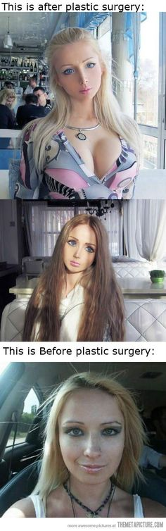 Real Life Barbie Before Plastic Surgery… Girls, don't do this.