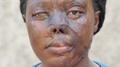 Petitioning Yoweri Museveni Kaguta Urge Ugandan President Museveni to pass the acid attack bill now.