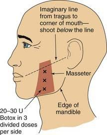 It has actually been used to deal with glabellar lines (the look of extreme frown lines between the eyebrows), excessive underarm sweating, spasticity, muscle disorders, and even weight problems. Botox Injection Sites, Botox Injections, Botox Fillers, Dermal Fillers, Face Fillers, Cosmetic Treatments, Skin Treatments, Excessive Underarm Sweating, Facial Anatomy