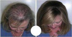 Oggi abbiamo deciso di svelarvi la ricetta dell'olio che fa ricrescere i capelli in modo naturale. Si tratta di una miscela a base di oli che promette grandi risultati.