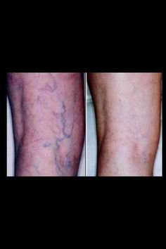 Not only does our DEFINING GEL tone, tighten, and firm...but it improves appearance of cellulite and vericose veins.