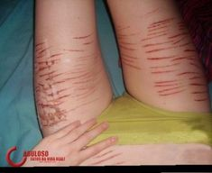 i'm not promoting self harm by pinning this.
