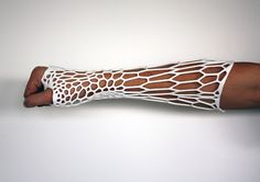 Is This 3-D Printed Cast the Future of Healing Broken Bones? alternative to traditional plaster and fiberglass casts; Lightweight, washable, ventilated and recyclable