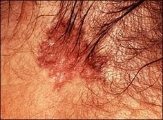 Skin Cancer Pictures: Basal Cell Carcinoma