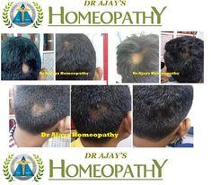Dr Ajays Homeopathy  : Homeopathy  For Alopecia Areata