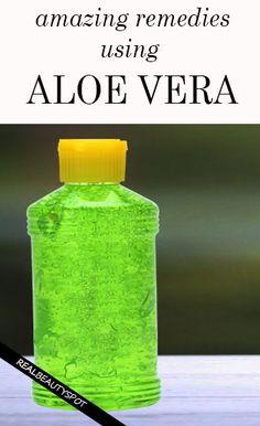 natural home remedies using aloe vera - scars, sunburn, indigestion, Hair loss…