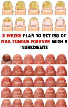 Secret Beauty Remedies 2 Weeks Plan To Get Rid Of Nail Fungus Forever With 2 Ingredients - Nail fungus is an awful sight that can also have serious consequences. 2 Weeks Plan To Get Rid Of Nail Fungus Forever With 2 Ingredients Fingernail Fungus, Toenail Fungus Cure, Fungus Toenails, Toenail Fungus Pictures, Best Toenail Fungus Treatment, Nail Infection Treatment, Fingernail Health, Thick Toenails, Fungi