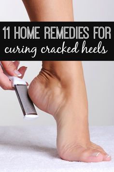 From listerine to coconut oil, this list of 11 home remedies will help heal your dry, cracked heels in no time!