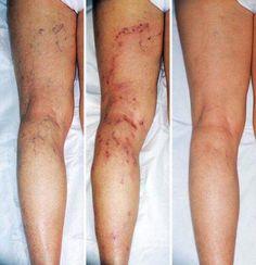 tratamentul varicoza rosya