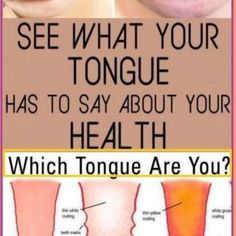 WHAT YOUR TONGUE CAN TELL YOU ABOUT YOUR HEALTH Healthy Tongue, Healthy Kidneys, Signs Of Adrenal Fatigue, Reducing Cortisol Levels, Adrenal Cortex, Low Stomach Acid, Regulate Blood Sugar, Receding Gums, Thyroid Problems