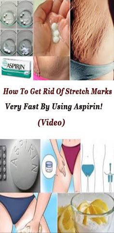 How To Get Rid Of Stretch Marks Very Fast By Using Aspirin! (Video)