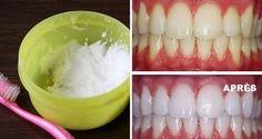 Voici comment avoir des dents blanches naturellement et rapidement