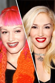 Gwen Stefani In Asia now, teens are wearing Ugly Betty-style fake braces to make a fashion statement. But Gwen Stefani was more than a deca. Fake Braces, Braces Girls, Teeth Braces, Braces Humor, Braces Types, Dental Teeth, Dental Care, Celebrities With Braces, Famous Celebrities