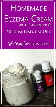 Homemade Eczema Cream   /veggieconverter/ sheabutter coconutoil diybeauty essential oils lavender melrose