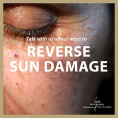 Talk with us about ways to reverse sun damage, including laser treatments, RF treatments, microneedling, skin care products, and more! Call now for your personalized consult 312.757.4505 #skincare #microneedling #lasertreatments #rftreatments #plasticsurgery #boardcertified #plasticsurgeon #chicagoplasticsurgery Plastic Surgery Procedures, Skincare, Chicago, Sun, Makeup, Products, Make Up, Skincare Routine