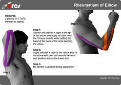 Using kinesiology tape to treat rheumatoid arthritis, the most common type of arthritis in the elbow #elbow #rheumatoid #RheumaticDisorder