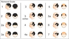 Norwood Scale to determine level of baldness