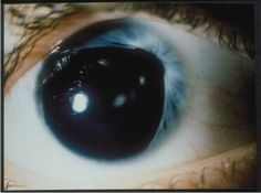 This person has partial aniridia, with only a small strip of iris on one side.  The rest is pupil.