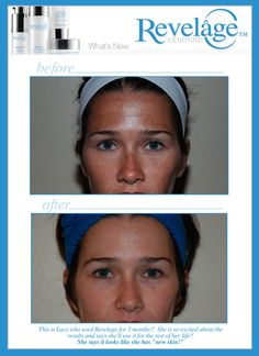 Want results like these? I can help! Contact me, Rhoda Talbot, Arbonne Independent Consultant, ID# 115076514 srcjtalbot@hotmail.com