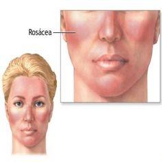 Herbal Remedies For Rosacea