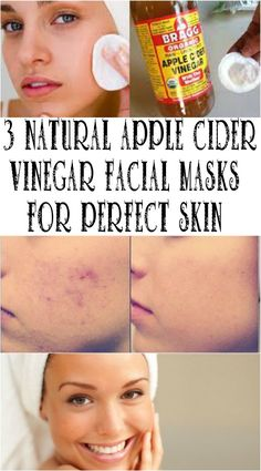 Face masks tips - A really handy resource on skin face care mask help and information. facial masks diy image 5046128601 generated on 20190602 . Please Visit the link to gleen over the info right mow Apple Cider For Face, Apple Cider Vinegar Facial, Apple Cider Vinegar Benefits, Apple Coder Vinegar Hair, Vinegar For Acne, Acv For Acne, Kitsune Maske, Facial Skin Care, Facial Masks