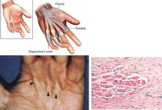 Dupuytren contracture is a slow progressive contracture of the palmar fascia causing flexion of the fourth and fifth fingers; results from inherited autosomal dominant trait; occurs most often in men over 50 years of age, of Scandinavian or Celtic descent, and is associated with diabetes, gout, arthritis, and alcoholism.