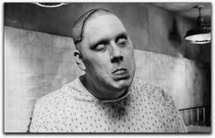 """""""Lobotomy is the insertion of a long, sharp knife into the brain to sever the brain in half.  Used to treat certain mental illnesses.  Here is a patient post-lobotomy."""""""