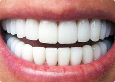 Hey guys, let me show you how to remove dental plaque without going to the dentist. You will like this video if you want; to get rid of dental plaque, remove. Diy Beauty, Beauty Hacks, Beauty Tips, Sedation Dentistry, Sleep Dentistry, Family Dentistry, Perfect Teeth, Dental Crowns, Dental Services