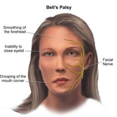 Natural Cures For Bell's Palsy