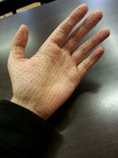 dotted palm