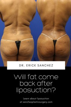 Board-certified plastic surgeon Dr. Erick Sanchez and the caring team at Sanchez Plastic Surgery in Baton Rouge, LA understand how frustrating it can be to continue to put the work in without seeing the results you want. Fortunately, liposuction can offer a safe, effective, and convenient solution for finally eliminating unwanted fat deposits. Board Certified Plastic Surgeons, Liposuction, Plastic Surgery, Comebacks, Blog, Baton Rouge, Blogging
