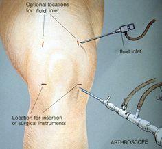 Meniscus Tear Symptoms | meniscus tear knee symptoms and treatment