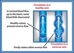 A major distinction between a healthy vein and a varicose vein is the circulation. If blood flow appears faulty and not normal, odds are it's a varicose vein.