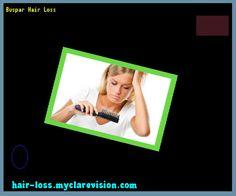 Buspar Hair Loss 212529 - Hair Loss Cure!