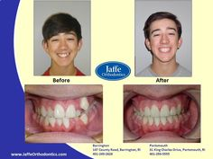 Stewart Orthodontics, Portsmouth, King Charles, Movie Posters, Photos, Pictures, Film Poster, Popcorn Posters, Billboard