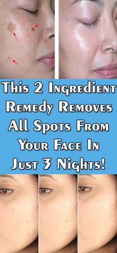 Only 2 ingredients remedy removes all spots from your face in just 3 nights… For the preparation you will need completely natural ingredients. Potato and lemon Ingredients: 1 potato juice of …