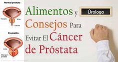 Tratamientos naturales para la prevención del cáncer de próstata