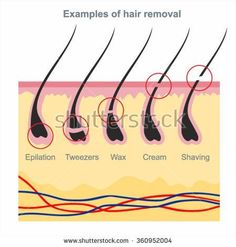 Laser hair elimination is epilation by laser or with using a special light. Besides the body, particular types of laser hair removal might safely be utilized to reduce facial hair as well. Sugaring Hair Removal, Hair Removal Diy, Laser Hair Removal, Electrolysis Hair Removal, Permanent Hair Removal, Hair Removal Methods, Hair Removal Cream, Waxing Tips, Color Del Pelo